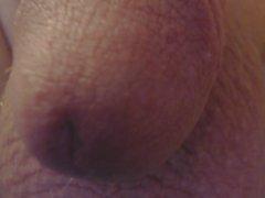 cut penis
