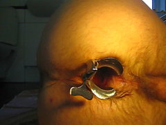 Eventually open male anus with speculum you were